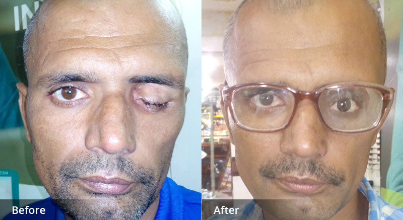 Artificial Eye Centre In Delhi, India