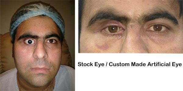 Artificial Eye in Delhi, Ocular Prosthesis in Delhi