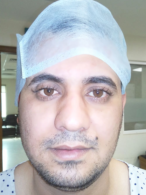 Motility Coupling Post, Artificial Eye Centre In Delhi, Best Ocularist in delhi